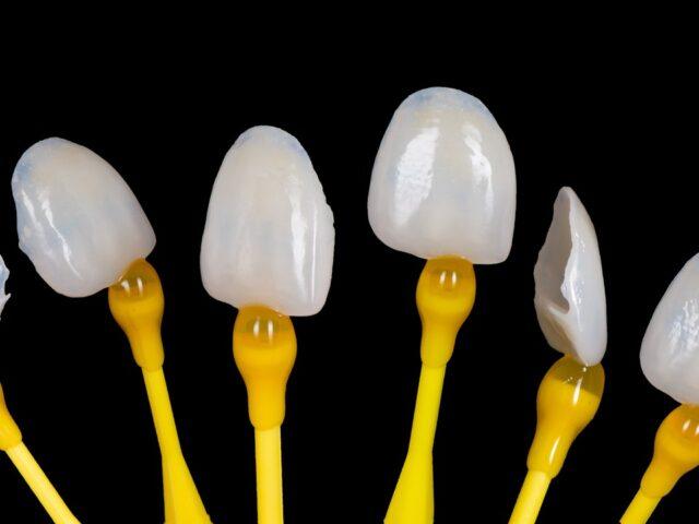 Dental,Esthetic,Ceramics,Laminated,Veneers