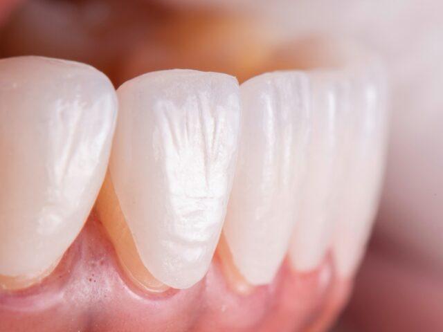 Try,In,Procedure,Of,Dental,Ceramic,Veneers,For,Lower,Teeth